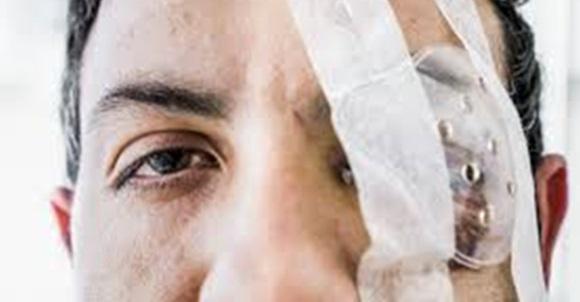 «Efectos de la cuarentena»: A golpes le sacó un ojo al cuñado